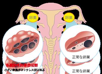 多嚢胞性卵巣症候群(PCOS:polycystic ovarian syndrome)☆川越市鶴ヶ島市の漢方薬局坂重薬局