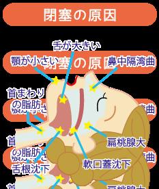 睡眠時無呼吸症候群(SAS)のメカニズム☆川越市鶴ヶ島市の漢方薬局坂重薬局