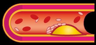 動脈硬化の原因・予防・改善★坂重薬局