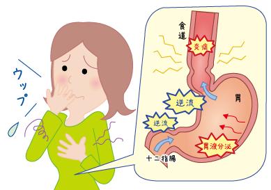 食道 逆流 炎 妊婦 性