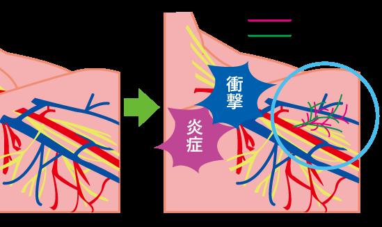 病的血管(異常血管)ができる要因☆川越市鶴ヶ島市の漢方薬局坂重薬局