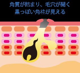 黒ニキビ☆川越市鶴ヶ島市の漢方薬局坂重薬局