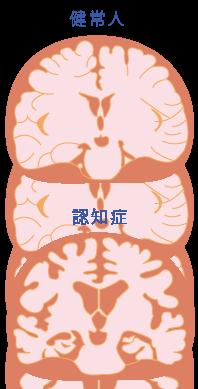 認知症の脳☆川越市鶴ヶ島市の漢方薬局坂重薬局