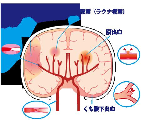 脳卒中には脳梗塞、脳出血、くも膜下出血などがあります☆川越市鶴ヶ島市の漢方薬局坂重薬局