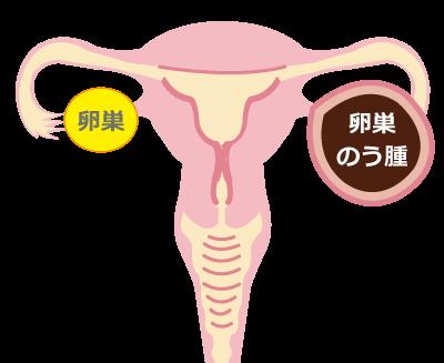 卵巣嚢腫卵巣腫瘍★川越市鶴ヶ島市の漢方薬局坂重薬局