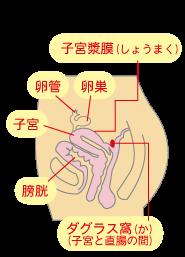 川越市鶴ヶ島市の漢方薬局坂重薬局☆子宮内膜症ができやすい箇所