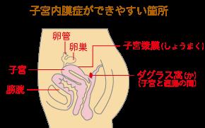 子宮内膜症★坂重薬局