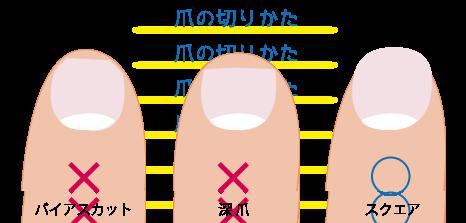 爪の切り方★川越市鶴ヶ島市の漢方薬局坂重薬局